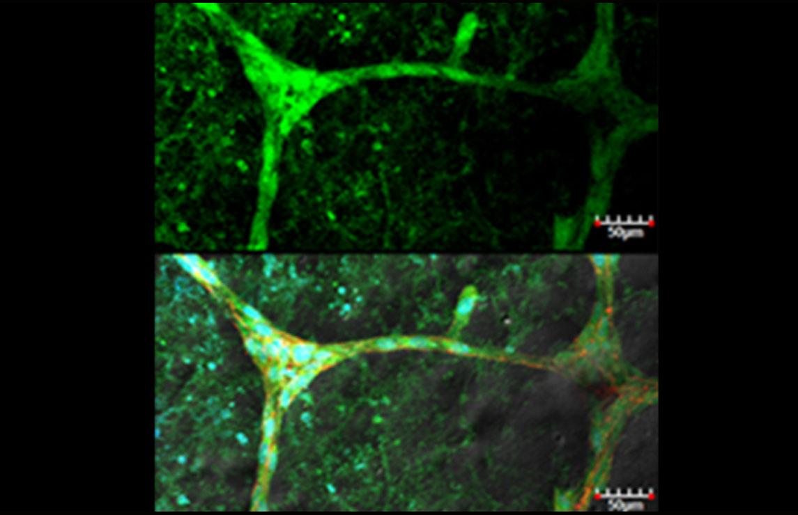 줄기세포의 특화된 분화를 엔지니어링한 결과 형성된 마이크로 혈관 이미지