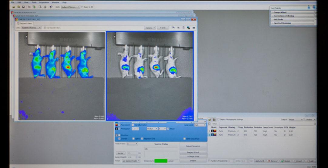 이미징 장비에서 관찰되는 암의 위치 (붉은색)